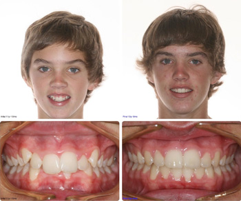 BeforeAfter_Patient9