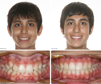 BeforeAfter_Patient4