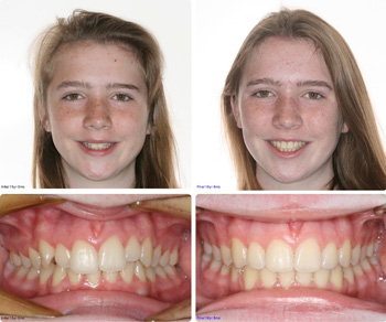 BeforeAfter_Patient5